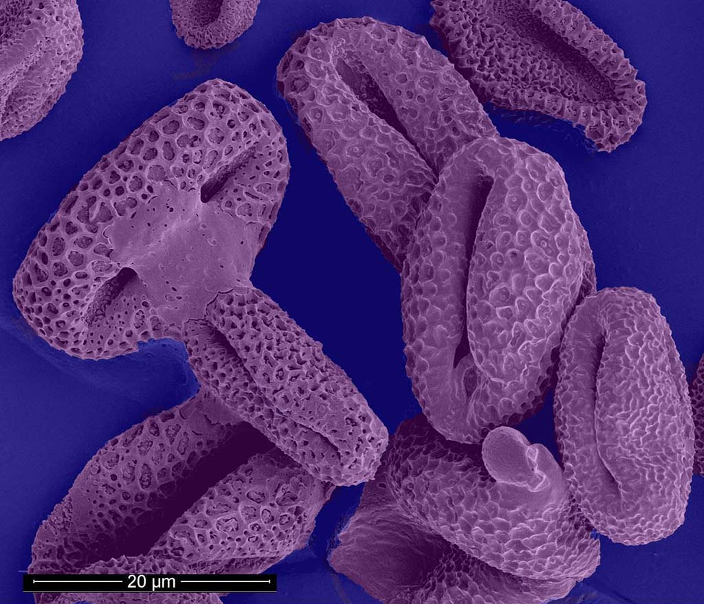 SEM Willow Tree Pollen by Ingeborg Schreur