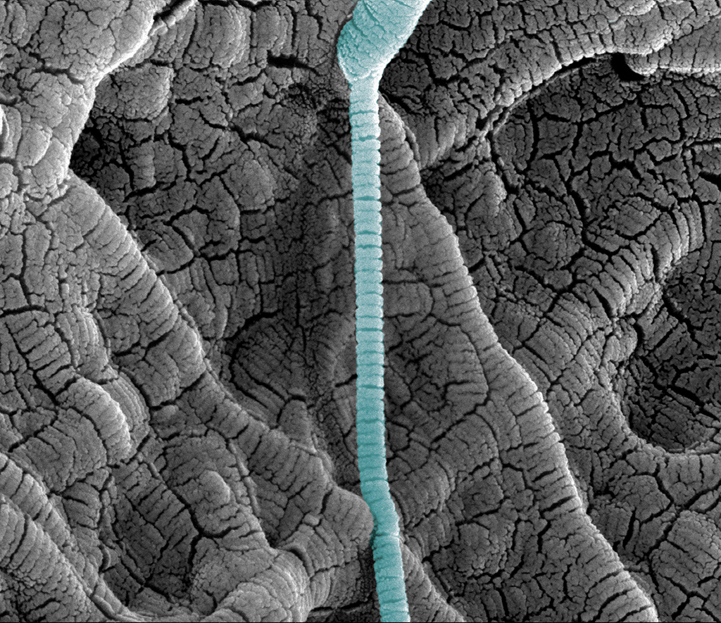 SEM image of collagen sponge, coated with gold at higher magnification by Remco Fijneman